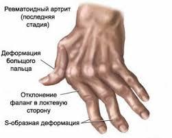 http://se.uploads.ru/t/gk7m2.jpg